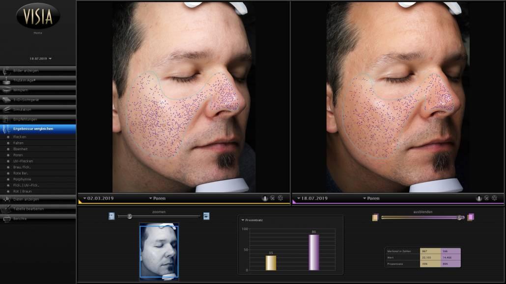Premiumbehandlung für eine Verbesserungen bereits nach der ersten Kosmetikbehandlung
