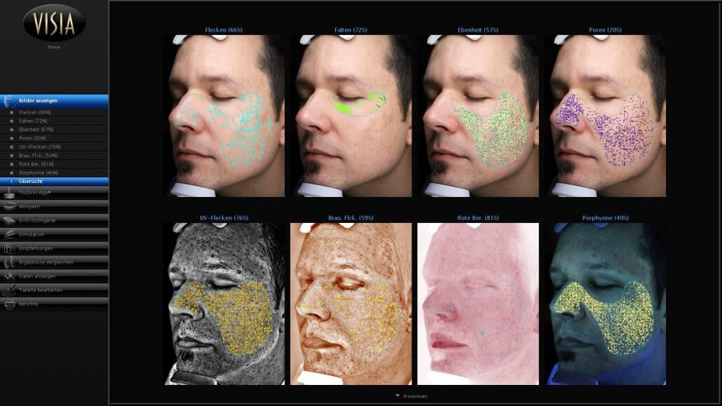 Analyse Ihres aktuellen Hautzustand mittels modernster Technik